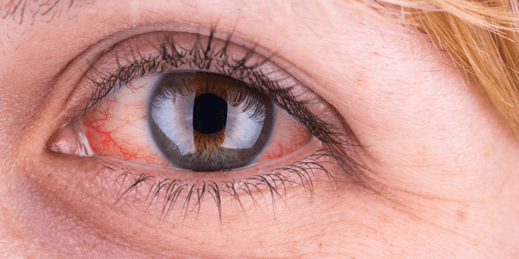 """Д-р Лариса Пенева в интервю за здравния портал """"По-здрави днес"""" относно зачервените очи"""